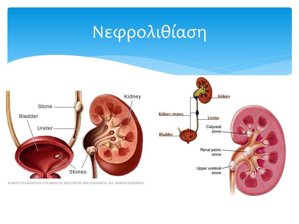 Νεφρολιθίαση