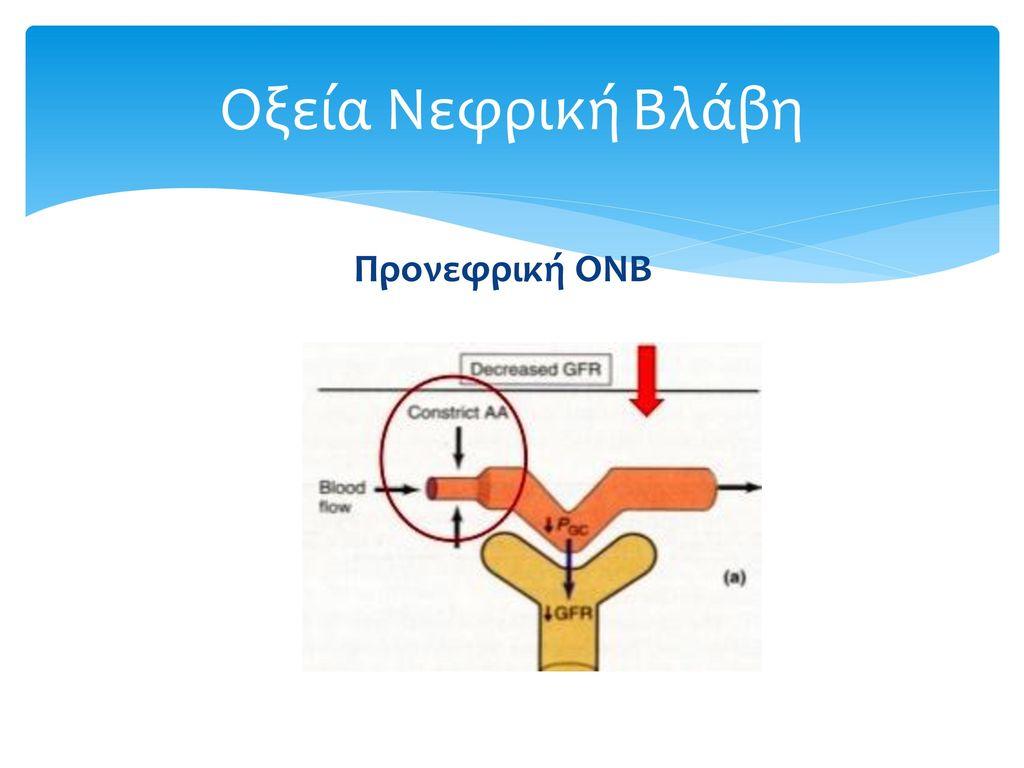Οξεία Νεφρική Βλάβη Προνεφρική ΟΝΒ
