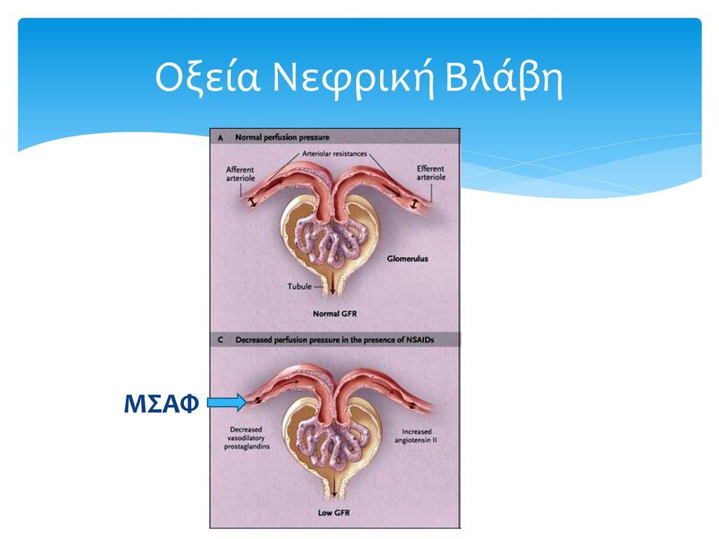 Οξεία Νεφρική Βλάβη ΜΣΑΦ
