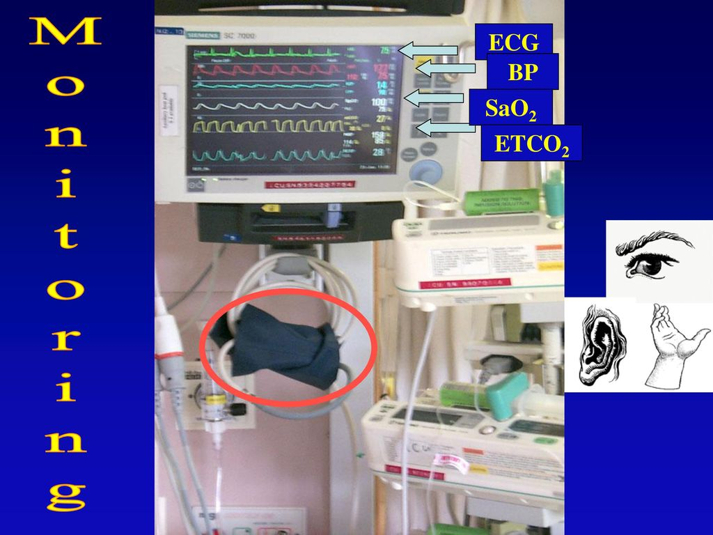 During intubation the patient must be adequately monitored