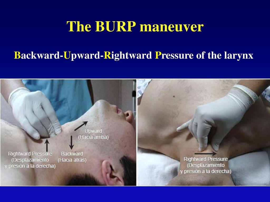 The BURP maneuver Backward-Upward-Rightward Pressure of the larynx