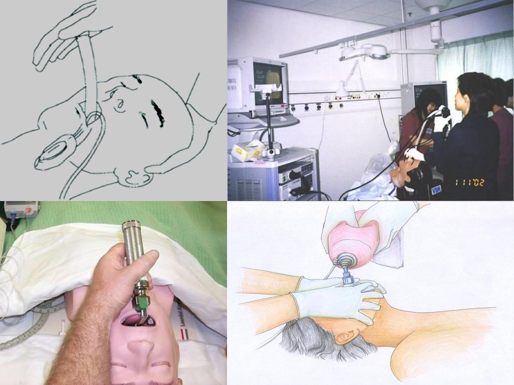 Many techniques to achieve airway patency are available