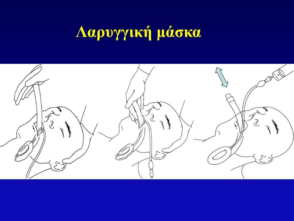Λαρυγγική μάσκα Continue applying pressure until a firm resistance is encountered. The cuff is then inflated with 20-40 ml of air (adult sizes)