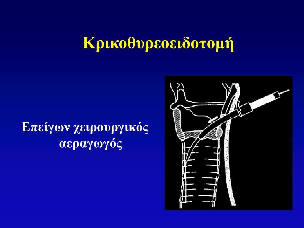 Επείγων χειρουργικός αεραγωγός
