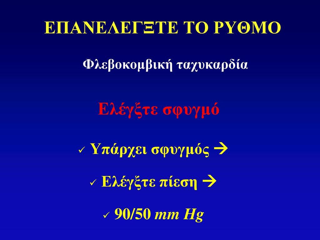 Φλεβοκομβική ταχυκαρδία