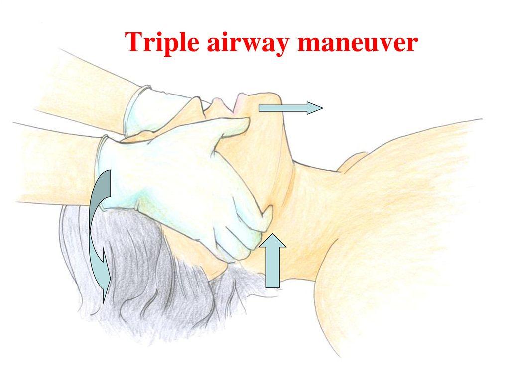 Τriple airway maneuver