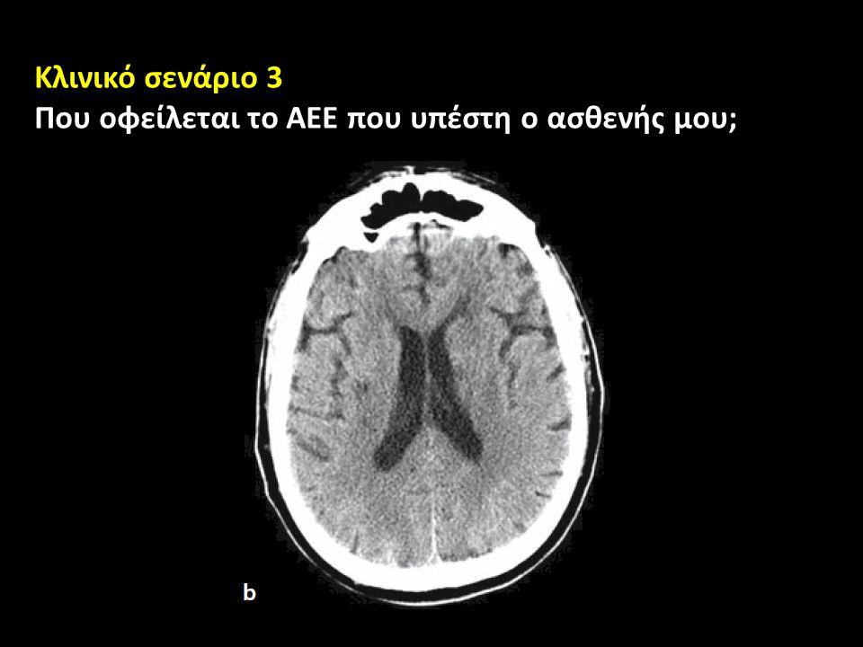 Που οφείλεται το ΑΕΕ που υπέστη ο ασθενής μου;