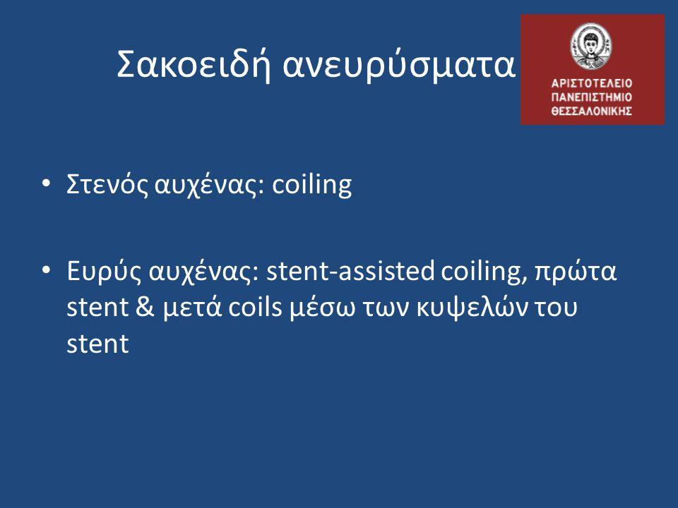 Σακοειδή ανευρύσματα Στενός αυχένας: coiling