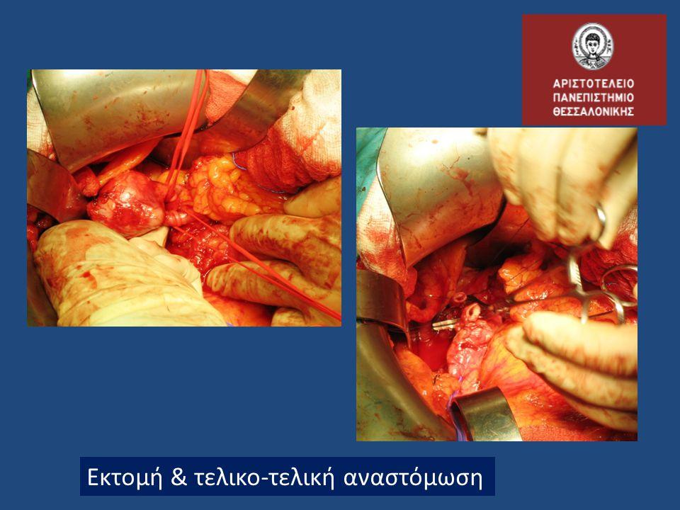 Εκτομή & τελικο-τελική αναστόμωση
