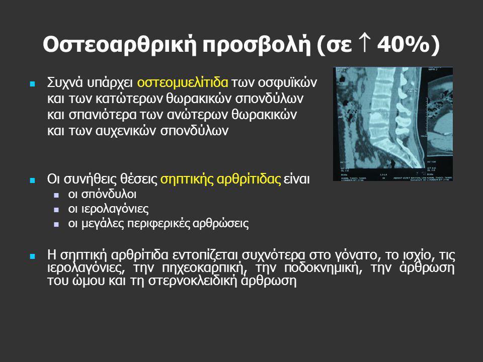 Οστεοαρθρική προσβολή (σε  40%)