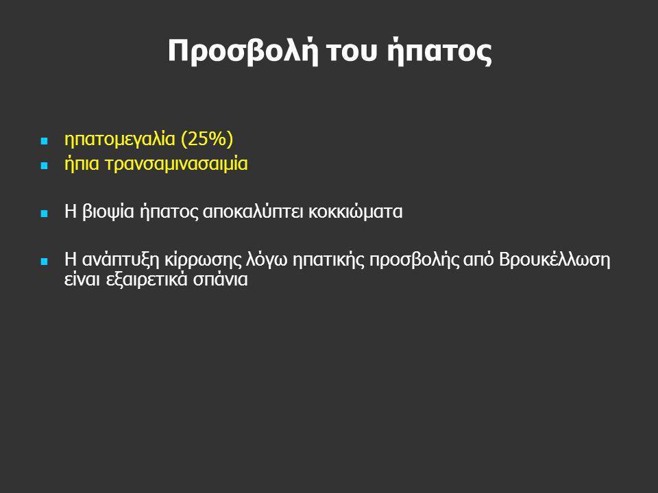 Προσβολή του ήπατος ηπατομεγαλία (25%) ήπια τρανσαμινασαιμία