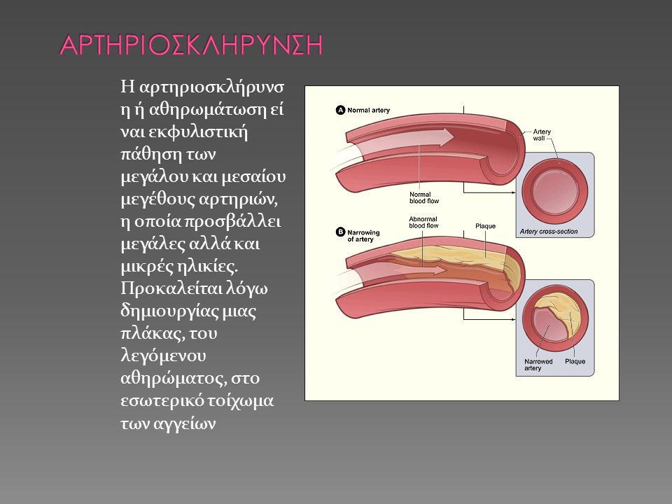 Αρτηριοσκληρυνση