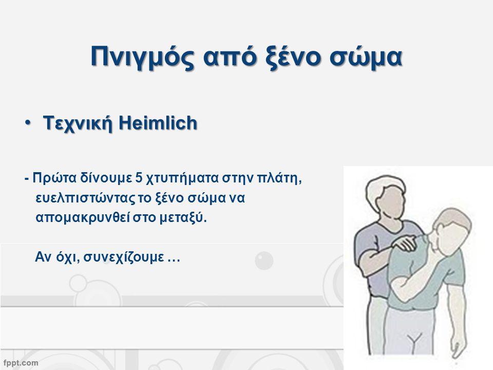 Πνιγμός από ξένο σώμα Τεχνική Heimlich