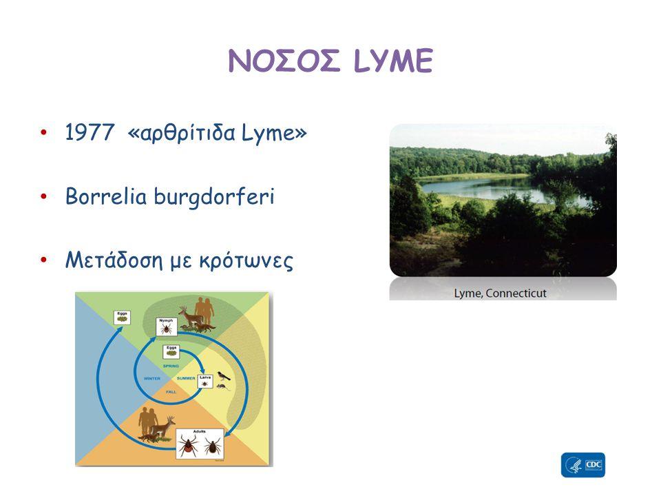 ΝΟΣΟΣ LYME 1977 «αρθρίτιδα Lyme» Borrelia burgdorferi