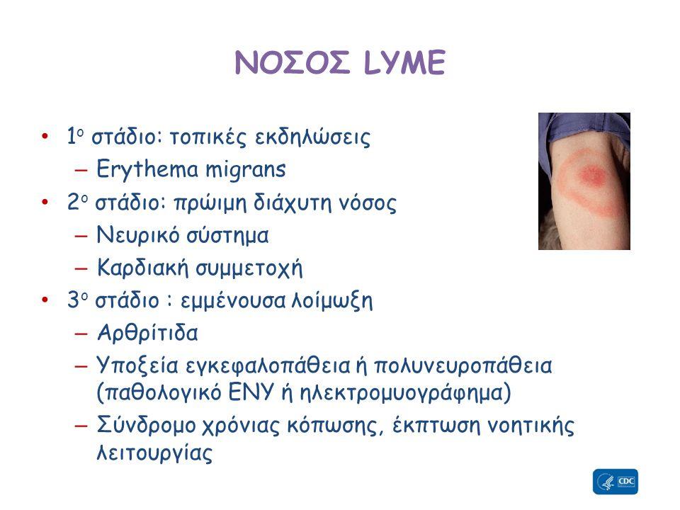 ΝΟΣΟΣ LYME 1ο στάδιο: τοπικές εκδηλώσεις Erythema migrans