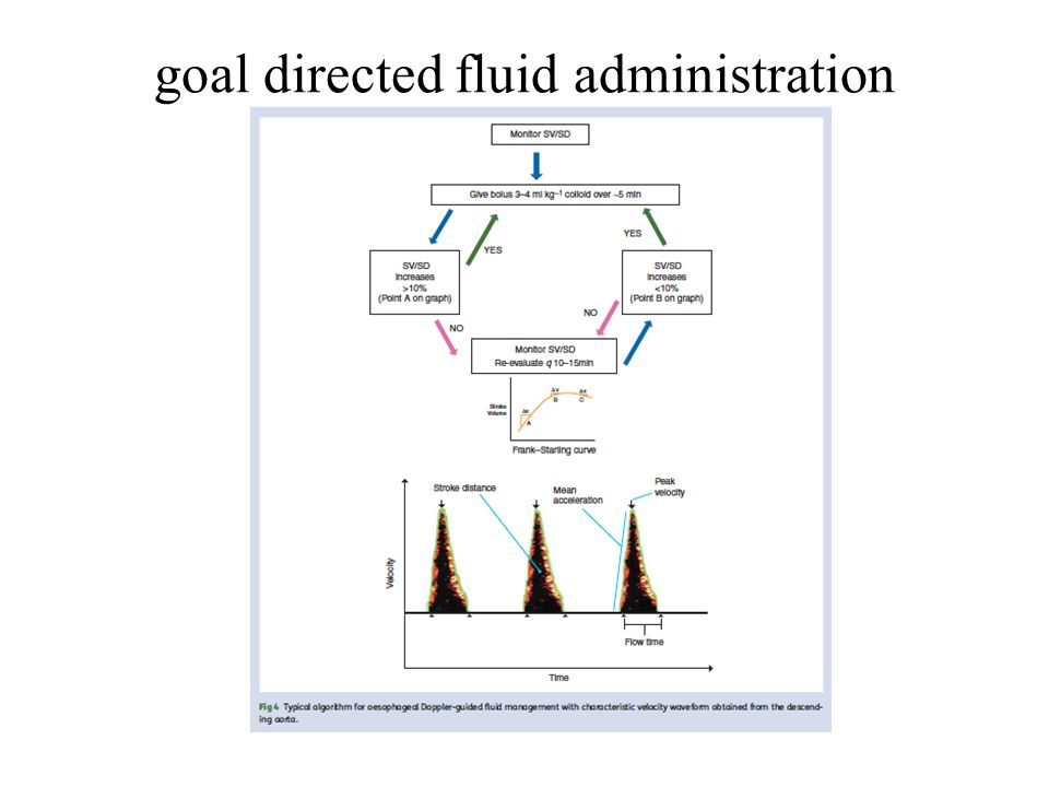 goal directed fluid administration