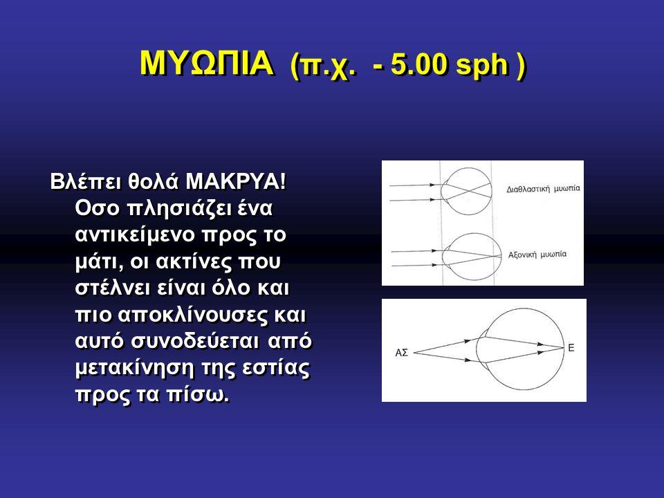 ΜΥΩΠΙΑ (π.χ. - 5.00 sph )