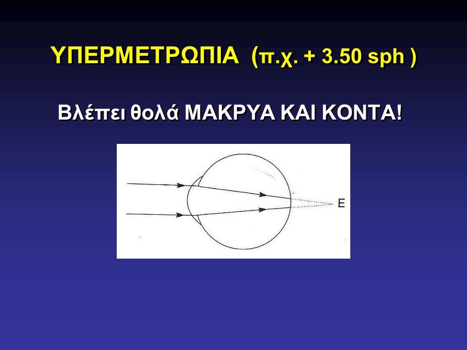 ΥΠΕΡΜΕΤΡΩΠΙΑ (π.χ. + 3.50 sph )