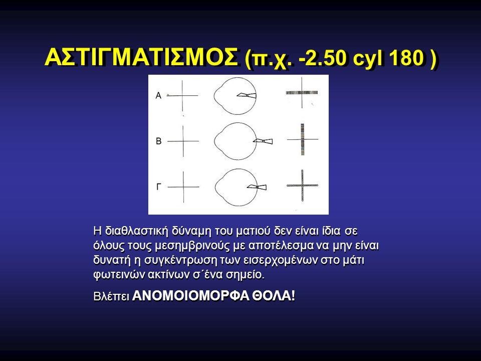 ΑΣΤΙΓΜΑΤΙΣΜΟΣ (π.χ. -2.50 cyl 180 )