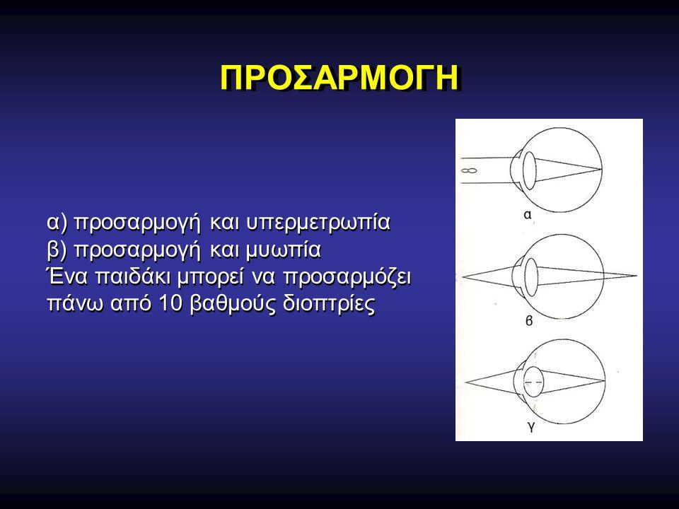 ΠΡΟΣΑΡΜΟΓΗ α) προσαρμογή και υπερμετρωπία β) προσαρμογή και μυωπία