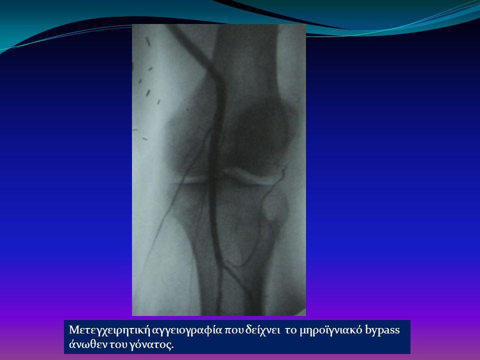 Μετεγχειρητική αγγειογραφία που δείχνει το μηροϊγνιακό bypass