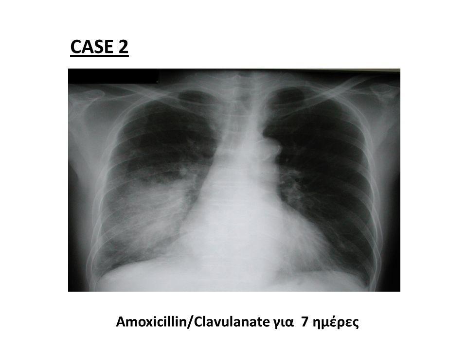 CASE 2 Amoxicillin/Clavulanate για 7 ημέρες