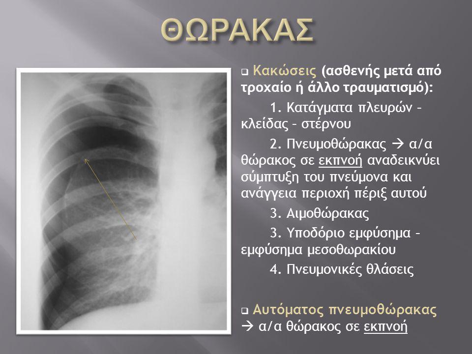 ΘΩΡΑΚΑΣ Κακώσεις (ασθενής μετά από τροχαίο ή άλλο τραυματισμό):