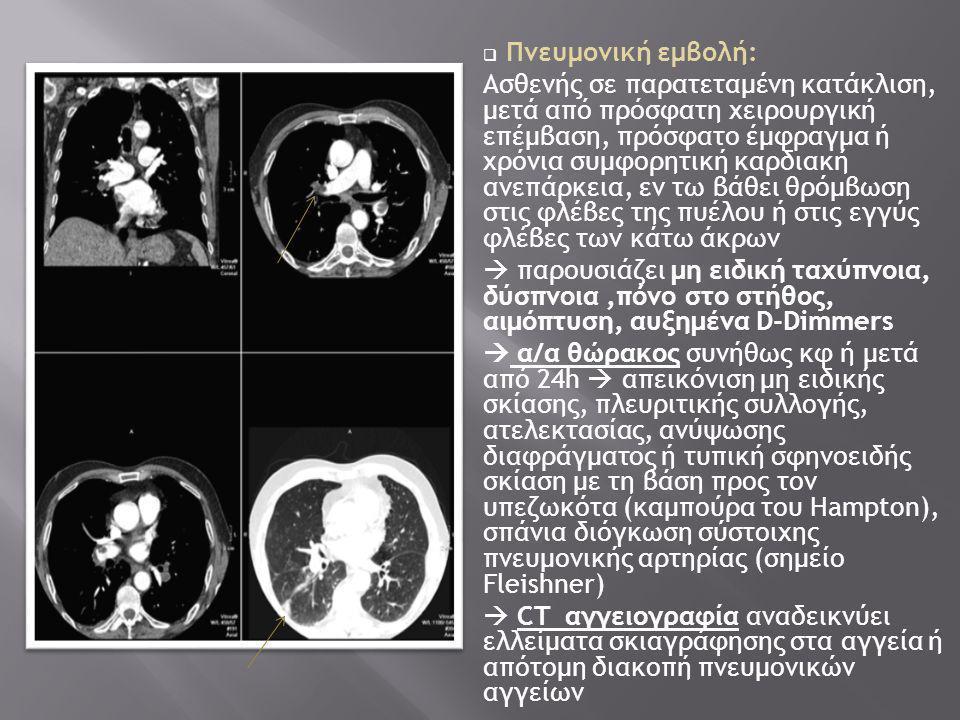 Πνευμονική εμβολή:
