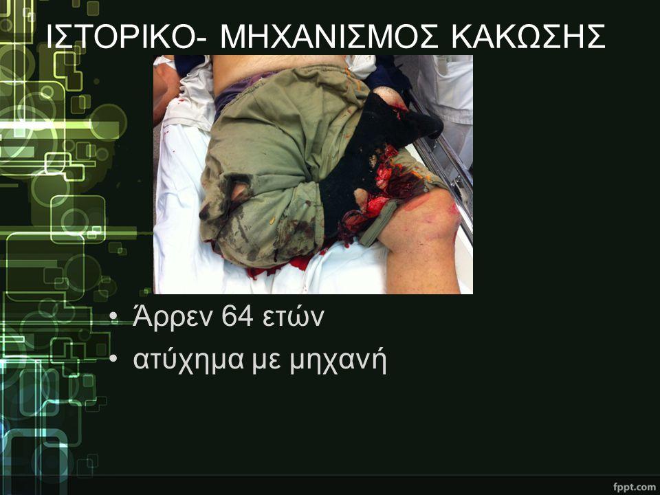 ΙΣΤΟΡΙΚΟ- ΜΗΧΑΝΙΣΜΟΣ ΚΑΚΩΣΗΣ