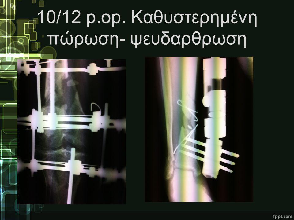 10/12 p.op. Καθυστερημένη πώρωση- ψευδαρθρωση