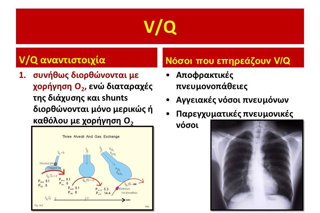 V/Q V/Q αναντιστοιχία Νόσοι που επηρεάζουν V/Q