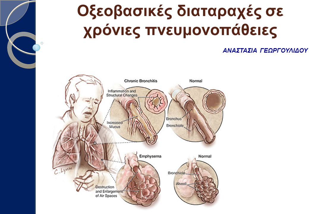 Οξεοβασικές διαταραχές σε χρόνιες πνευμονοπάθειες