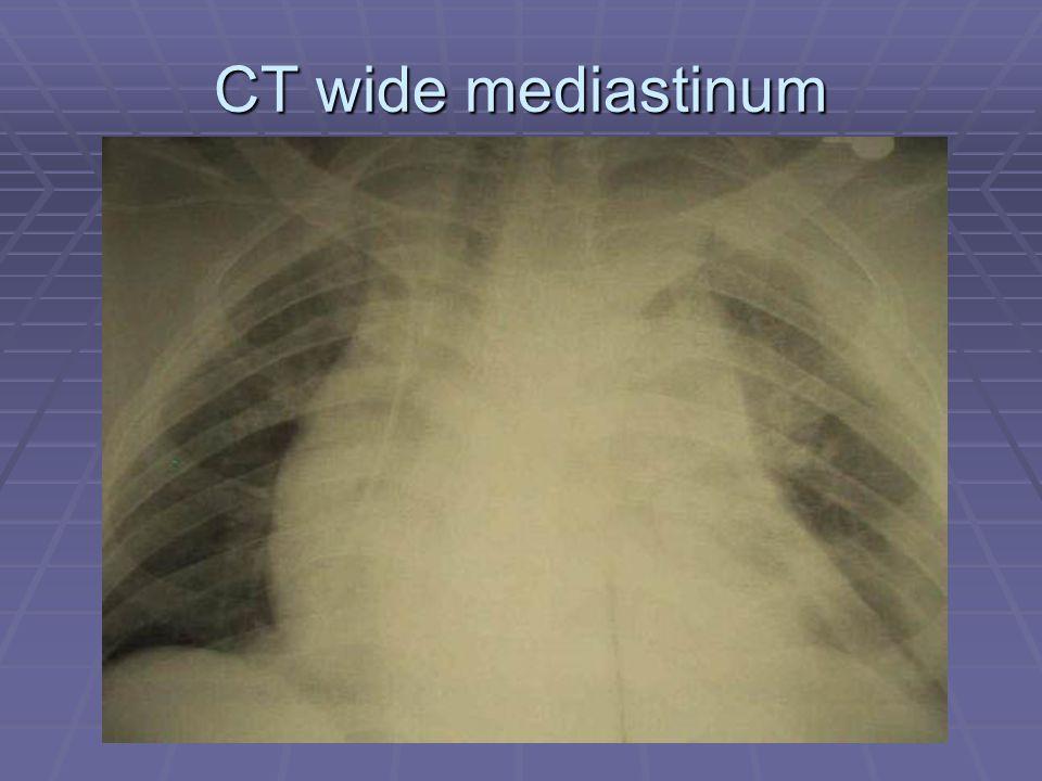 CT wide mediastinum