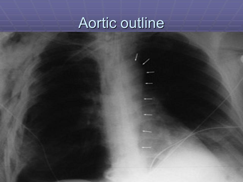 Aortic outline Abnormal mediastinum