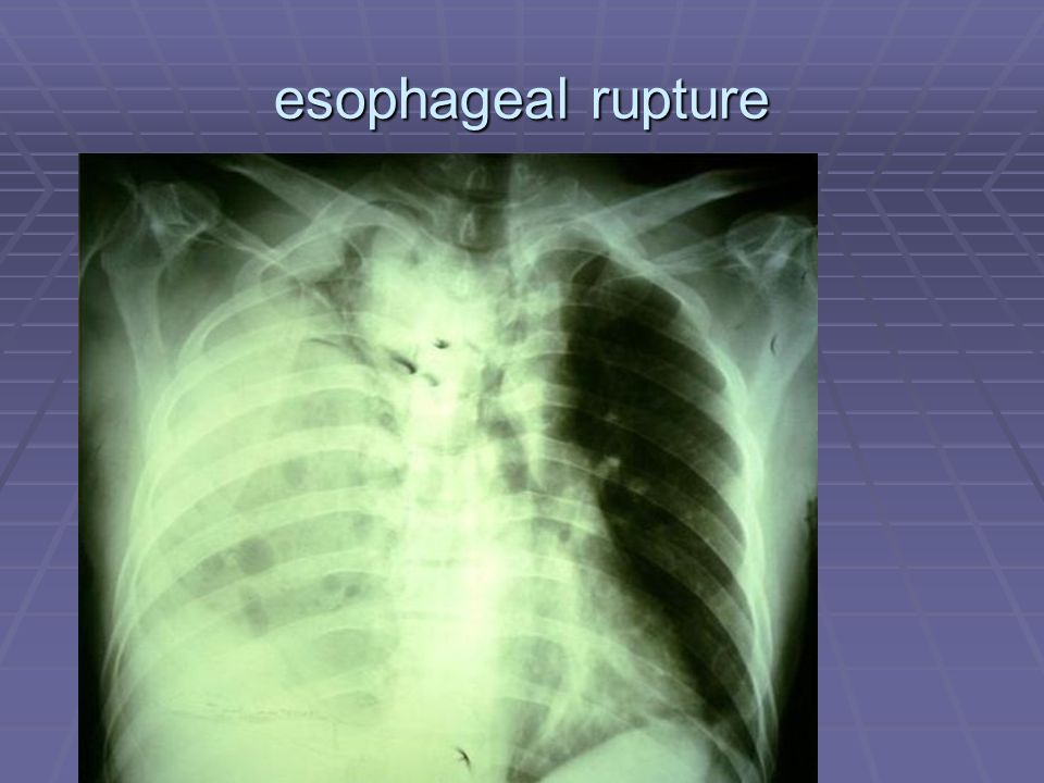 esophageal rupture Esophagogram-esophageal rupture-leak of contrast from thoracic esophagus to right pleural cavity after blunt trauma chest.