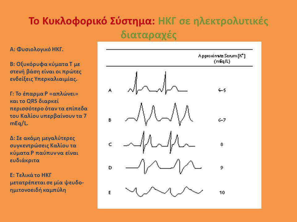 Το Κυκλοφορικό Σύστημα: ΗΚΓ σε ηλεκτρολυτικές διαταραχές