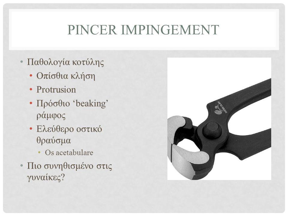 Pincer impingement Παθολογία κοτύλης Οπίσθια κλήση Protrusion