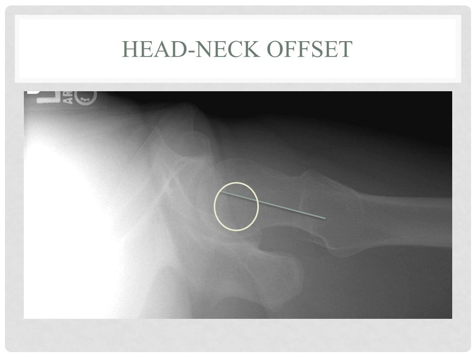 Head-Neck Offset