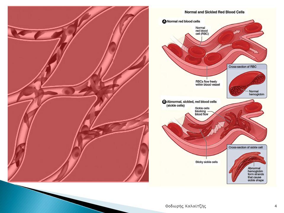 Δρεπανοκυτταρική αναιμία (2)