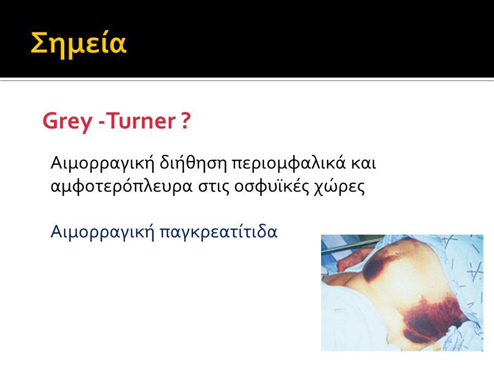 Σημεία Grey -Turner . Αιμορραγική διήθηση περιομφαλικά και αμφοτερόπλευρα στις οσφυϊκές χώρες.