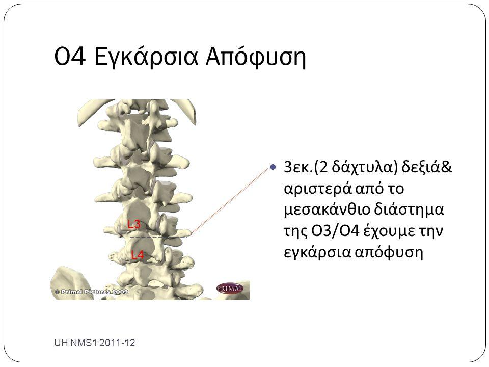 Ο4 Εγκάρσια Απόφυση 3εκ.(2 δάχτυλα) δεξιά& αριστερά από το μεσακάνθιο διάστημα της Ο3/Ο4 έχουμε την εγκάρσια απόφυση.