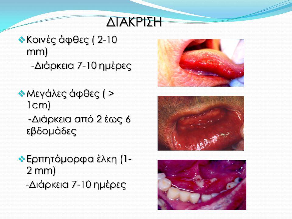 ΔΙΑΚΡΙΣΗ Κοινές άφθες ( 2-10 mm) -Διάρκεια 7-10 ημέρες