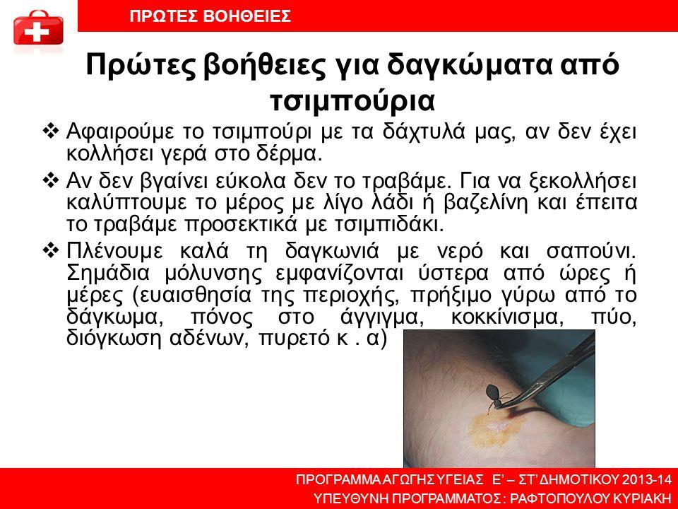 Πρώτες βοήθειες για δαγκώματα από τσιμπούρια