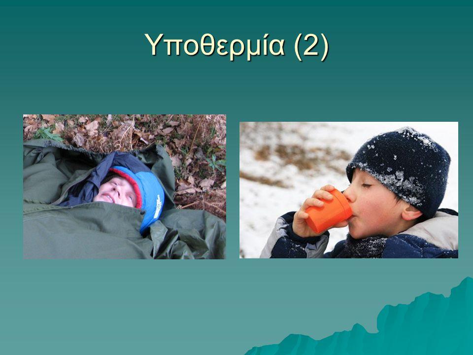 Υποθερμία (2)