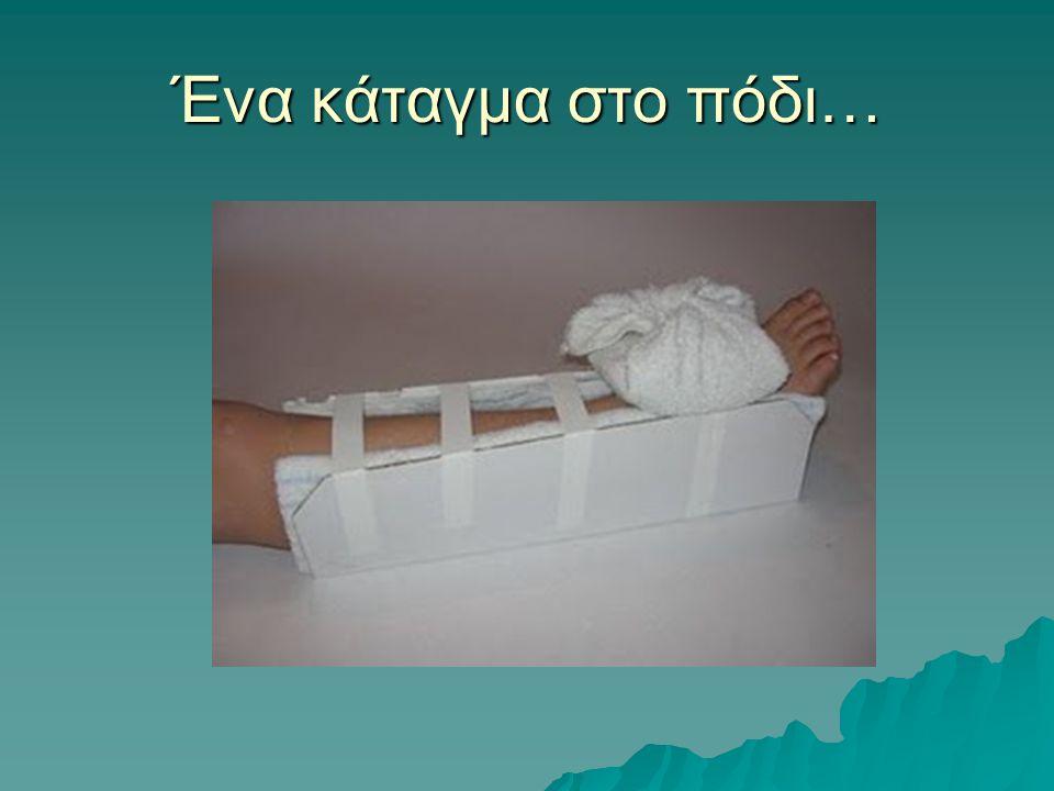 Ένα κάταγμα στο πόδι…