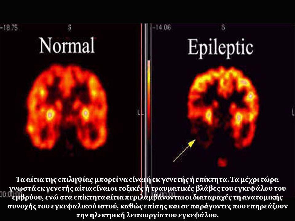 Τα αίτια της επιληψίας μπορεί να είναι ή εκ γενετής ή επίκτητα