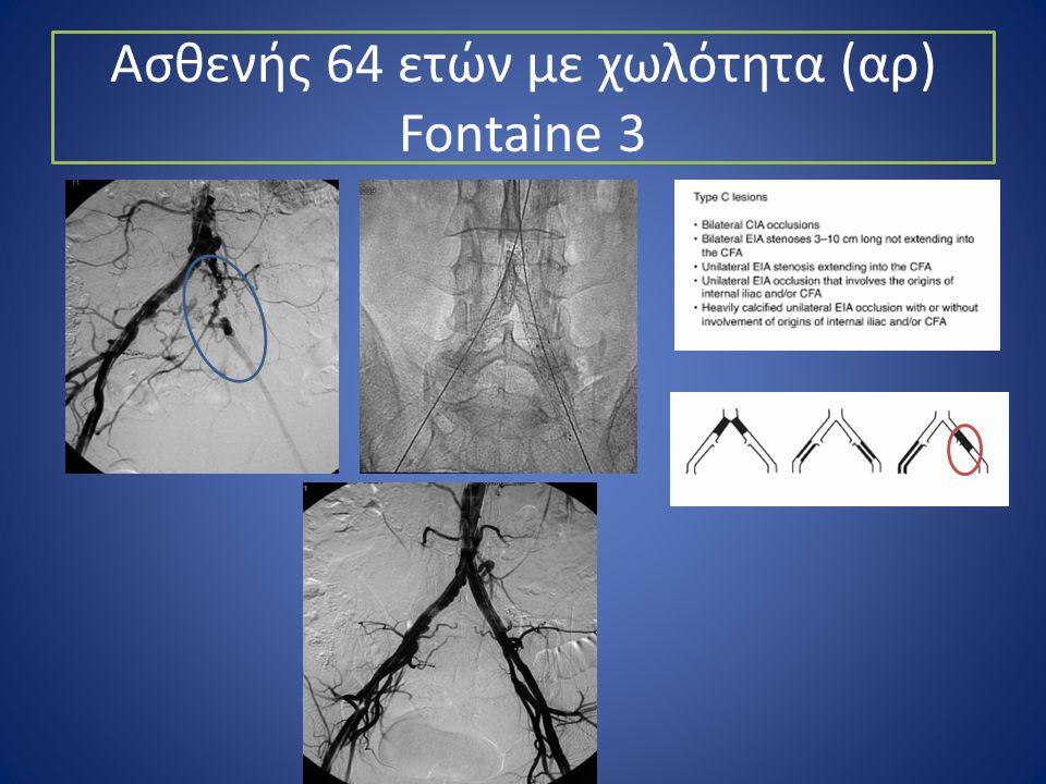 Ασθενής 64 ετών με χωλότητα (αρ) Fontaine 3