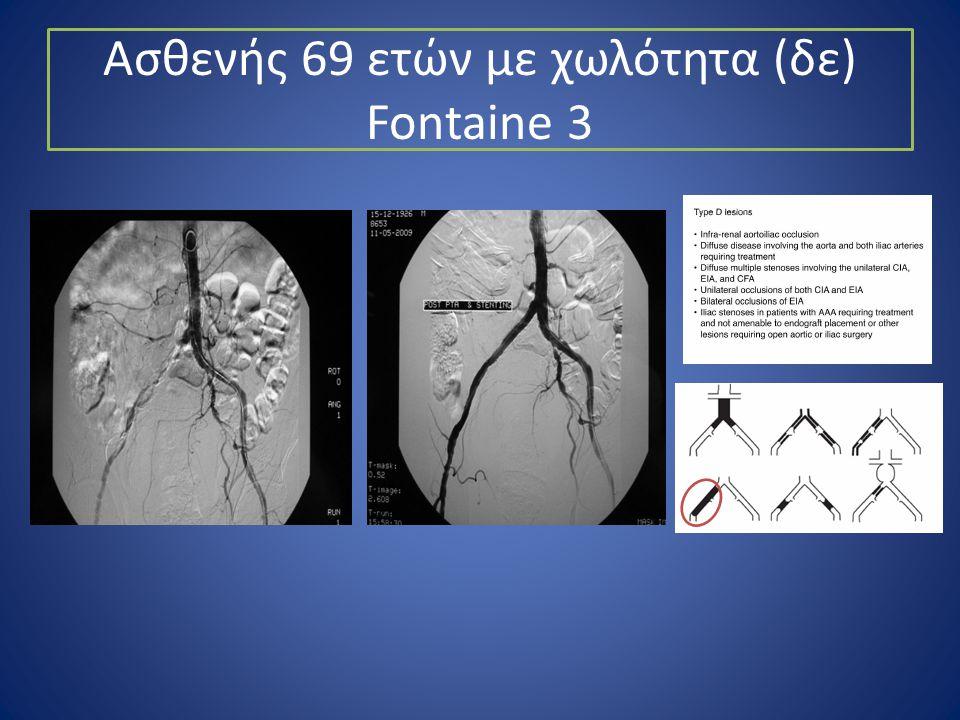 Ασθενής 69 ετών με χωλότητα (δε) Fontaine 3