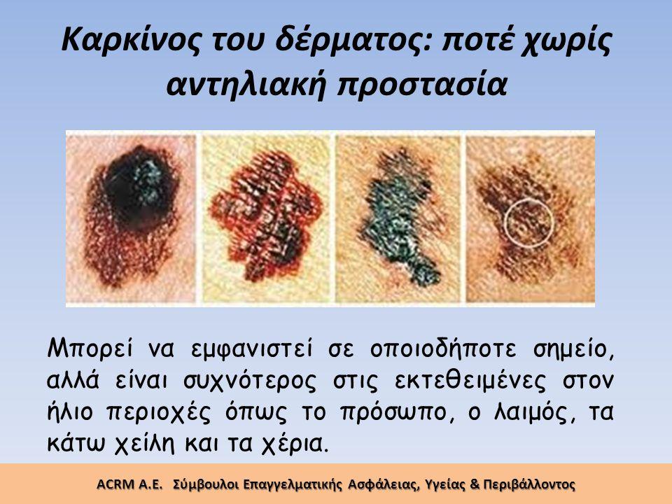 Καρκίνος του δέρματος: ποτέ χωρίς αντηλιακή προστασία