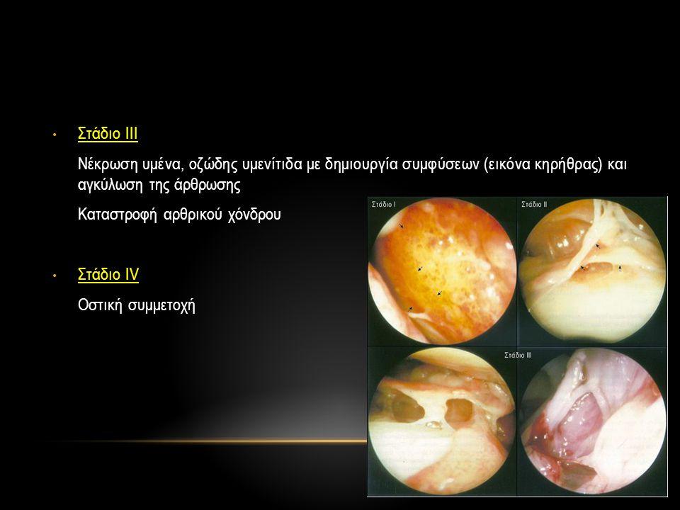 Στάδιο ΙΙΙ Νέκρωση υμένα, οζώδης υμενίτιδα με δημιουργία συμφύσεων (εικόνα κηρήθρας) και αγκύλωση της άρθρωσης.